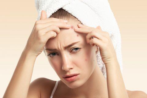 acne-femme-visage