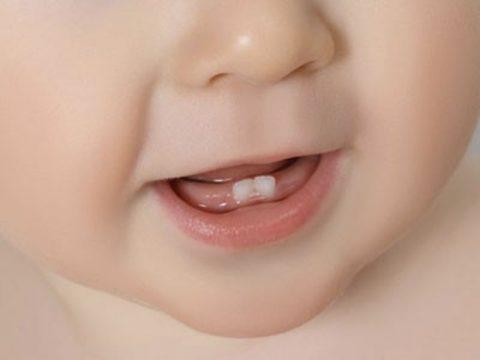 les poussées dentaires de bébé
