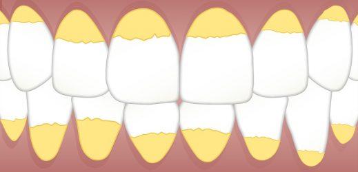 dental-3599734_960_720